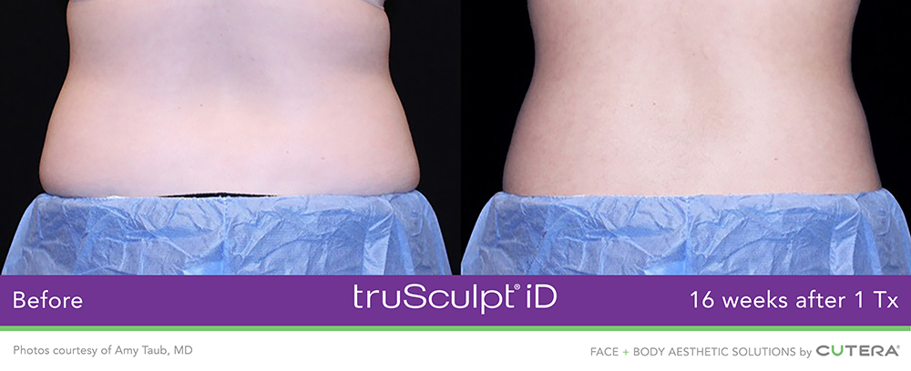 truSculpt® iD before & after